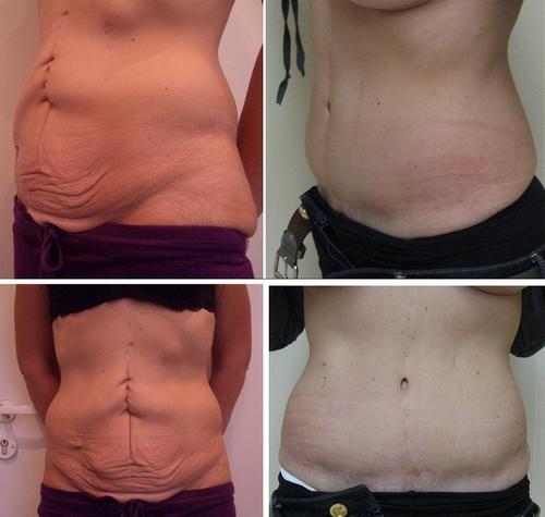 Восстановить кожу после похудения в домашних условиях