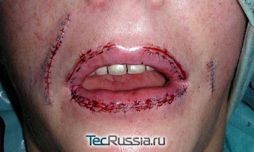 фото после удаления филлера из губ