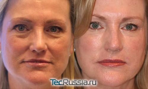 липофилинг для удаления морщин и носогубных складок – фото до и после