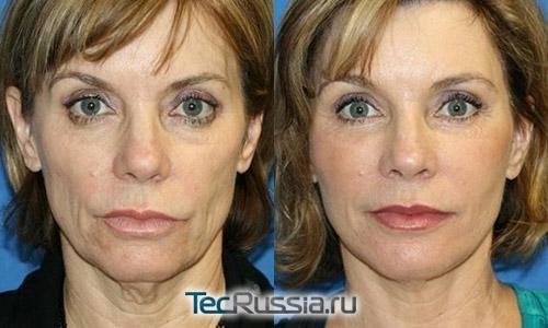 фото до и после липофилинга с подтяжкой лица, вид спереди