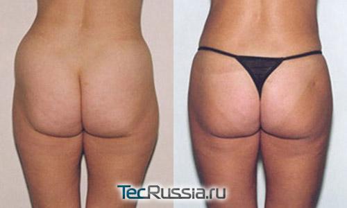 липосакция жира с бедер и его пересадка в ягодицы, фото до и после операции
