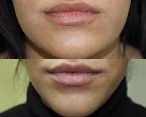 фото до и после удаления комков Биша, хирург Амжад Аль-Юсеф