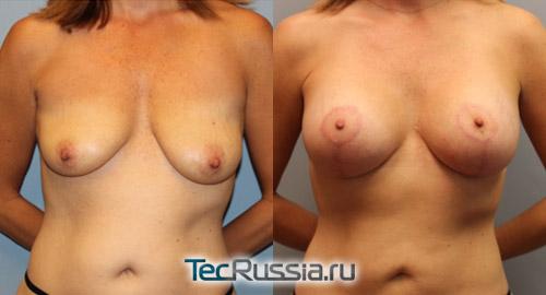 фото до и после маммопластики (подтяжка груди с установкой имплантов)