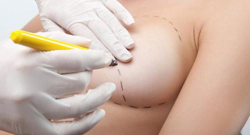 Разметка перед пластикой груди
