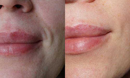 фото до и после биоревитализации гиалуроновой кислотой
