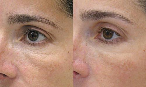 мезотерапия гиалуроновой кислотой – фото до и после