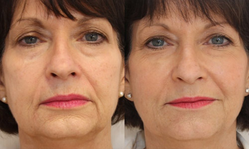 контурная пластика лица, фото до и после
