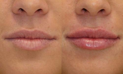 результат увеличения губ гиалуроновым филлером