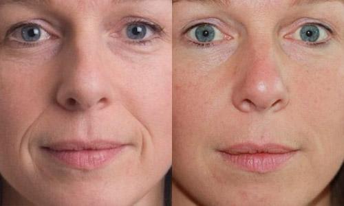 уколы гиалуроновой кислоты – фото до и после (лицо)