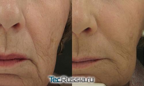 заполнение носогубных складок филлером Радиесс