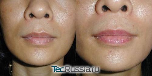 повреждения сосудов и уплотнения после увеличения губ
