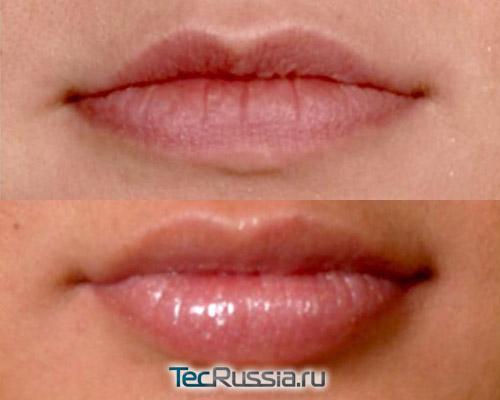 Плюриаль для увеличения губ – фото до и после