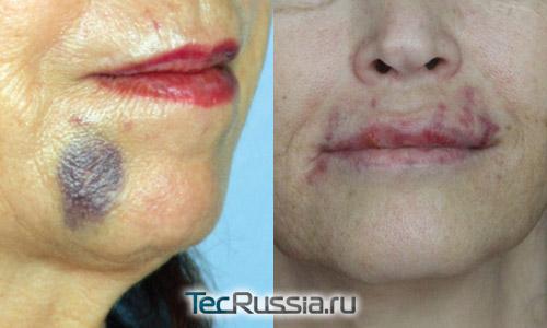синяки на лице и на губах после введения филлеров гиалуроновой кислоты