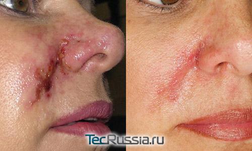 некроз кожи из-за закупорки сосуда филлером и шрам после лечения