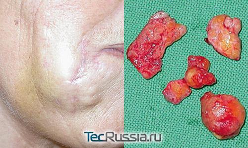 проблемы после инъекций акрилового геля в лицо