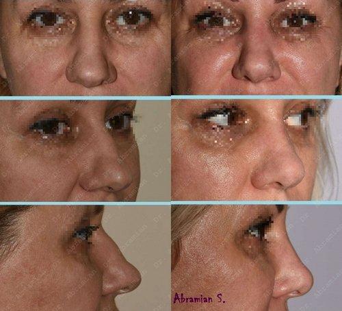 устранение горбинки на носу, хирург Абрамян С.М.