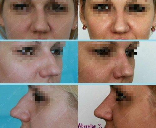 фото до и после ринопластики, хирург – Абрамян С.М.
