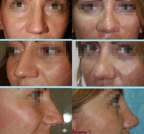 уменьшение длины носа