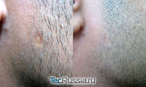 фото до и после удаления ветряночной ямки на лице