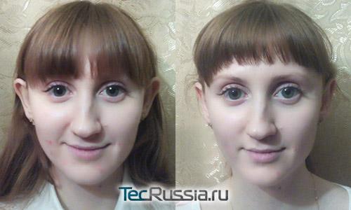 фото до и после использования ушных корректоров у ребенка