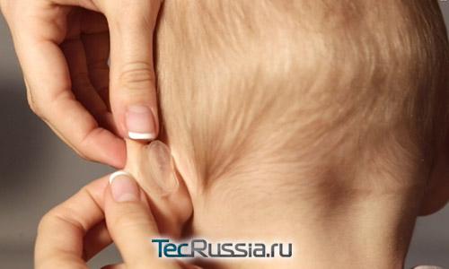 корректор на ухе у ребенка
