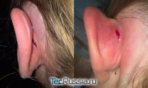 травма кожи на ухе после крепления корректора