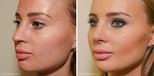 фото до и после пластики носа, вид в три четверти