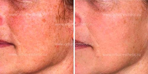 коррекция кожи лица и пигментных пятен