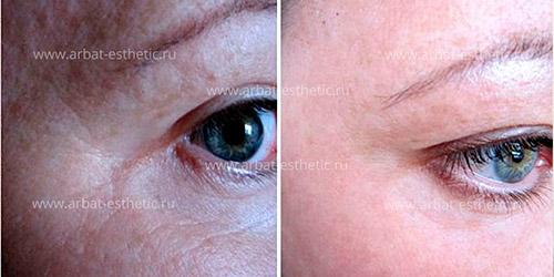 морщины вокруг глаз до и после A-Esthetic