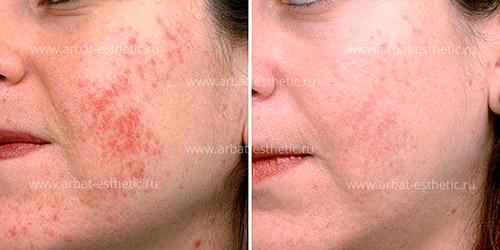 удаление сосудистых патологий на лице (проведена шлифовка и игольчатый RF-лифтинг)