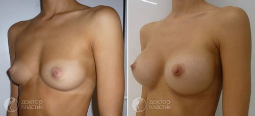 фото до и после пластики груди, Хирург Сергеев И.В.