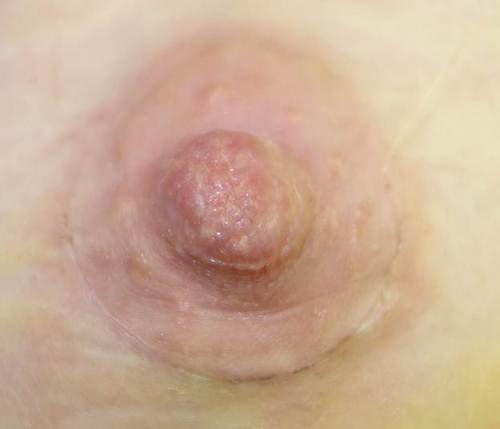 швы после увеличения груди, прошла 1 неделя