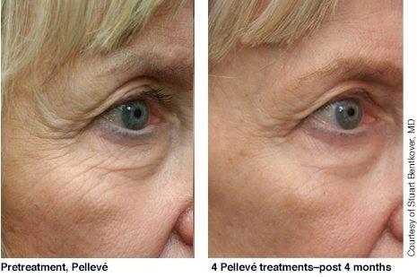 Pelleve – фото до и после
