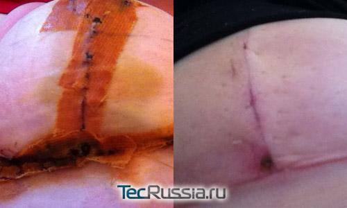 шрамы после редукционной маммопластики