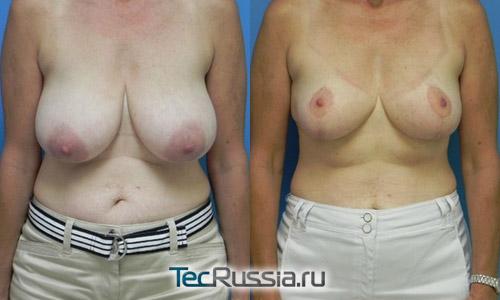 результаты редукционной маммопластики с мастопексией