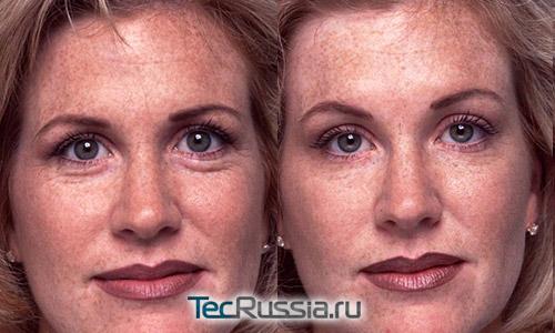 фото до и после подтяжки бровей ботоксом