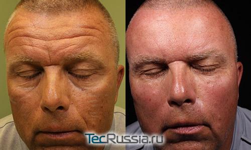 пациент-мужчина после уколов ботокса в лоб
