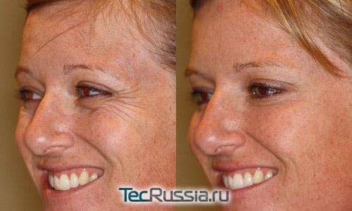 до и после удаления морщин ботоксом
