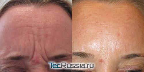 морщины между бровей до и после инъекций ботулотоксина