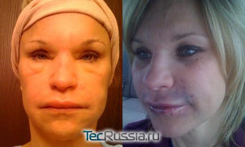 аллергия после уколов гиалуроновой кислоты