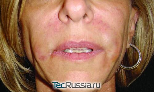 аллергия на гиалуроновую кислоту симптомы