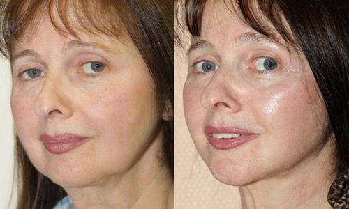 фото до и после фейслифтинга у доктора Кудиновой