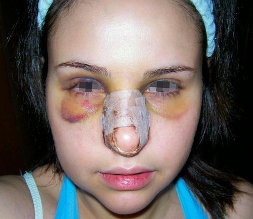 пациентка после ринопластики открытым способом