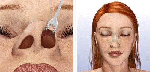 схема пластики носа