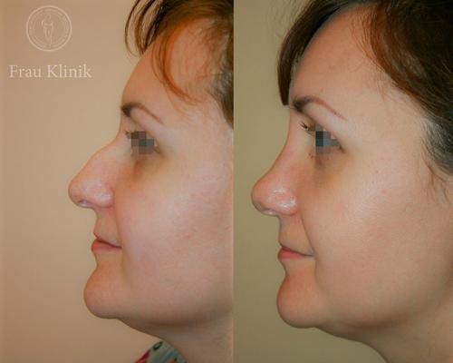Микроринопластика – фото до и после операции
