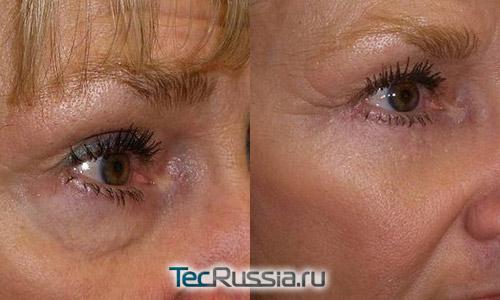 крем от морщин под глазами клиник отзывы