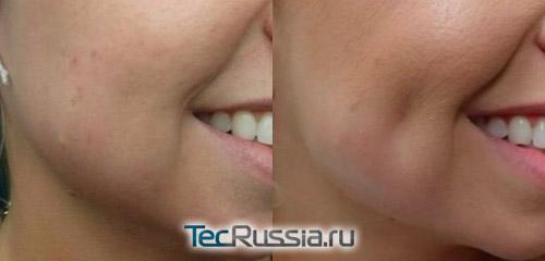 резльтаты операции по созданию ямочек на щеках