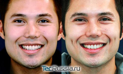 ямочки на щеках у мужчины – до и после операции