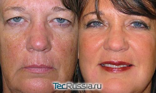 до и после лазерного пилинга лица