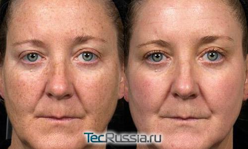 фото до и после лазерного пилинга пигментных пятен на лице